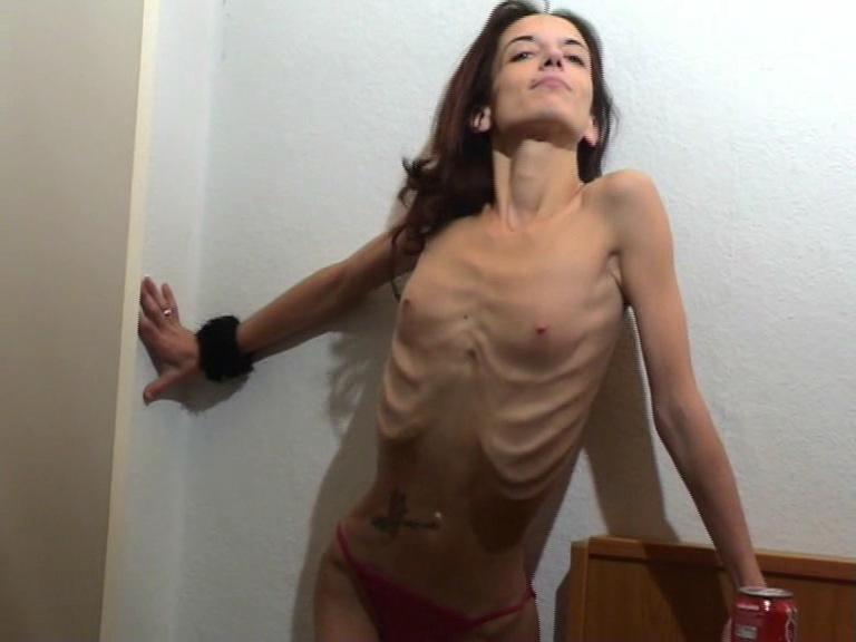 Anorexic girls bony skinny